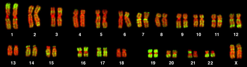 This is a karyotype of a human female. There are 22 homologous pairs of chromosomes and a pair of X chromosomes
