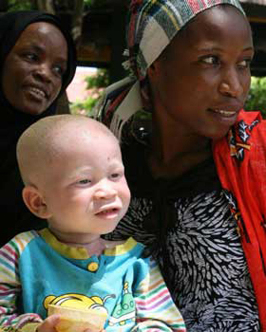 Photo shows a mother with an albino child
